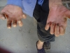 Effect of leprosy